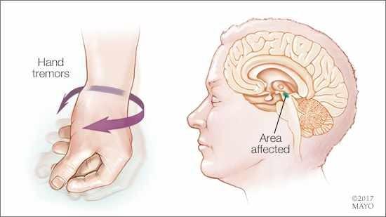 Primeiro Ensaio Clínico do Mundo Tratar a Doença de Parkinson com Células-Tronco