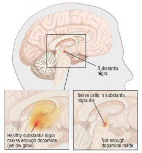 Mal de Parkinson - Doença de Parkinson
